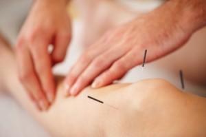 Få behandling med Akupunktør