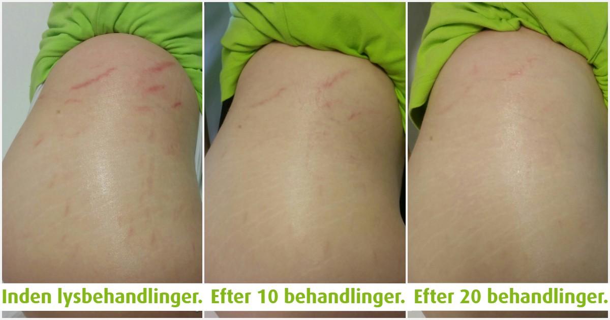 Viborg Helsepraktik er forhandler af Beauty Angel Lysbehandlinger